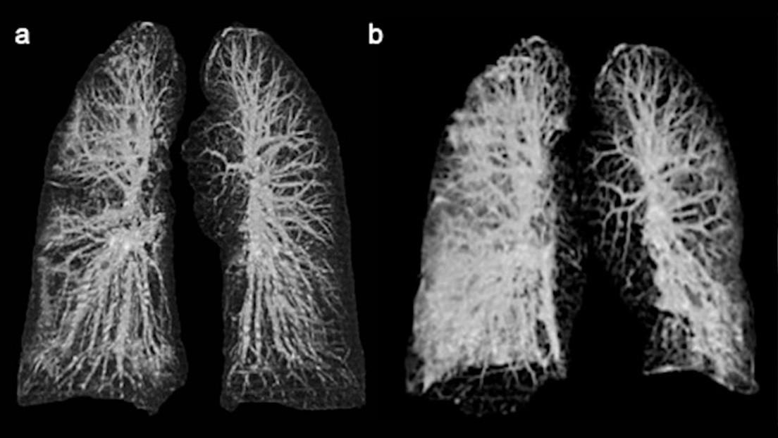 Курение во время пандемии ведёт к осложнениям