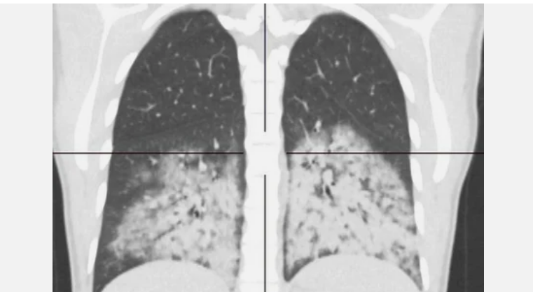 Парение вейпа привело к обширному поражению лёгких