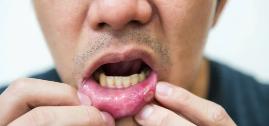 Названы болезни полости рта, которые возникают из-за сигарет